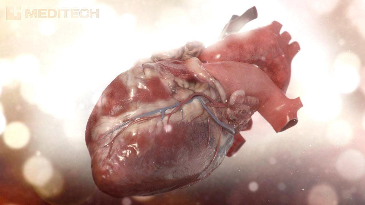 Heart by Joel Erkkinen