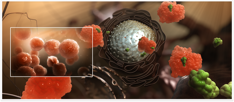 Prostate cancer by inVivo studio